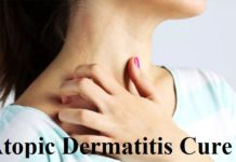 Atopic Dermatitis Cure