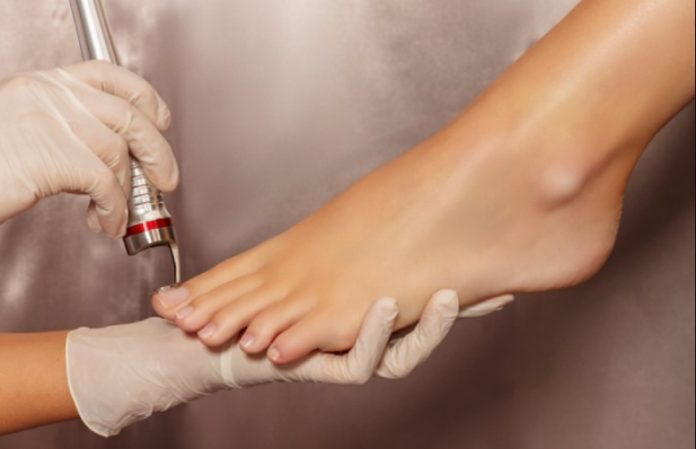 What is laser treatment