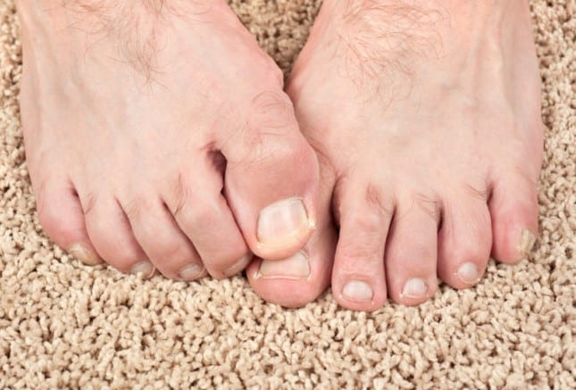 How to prevent toenail fungus?