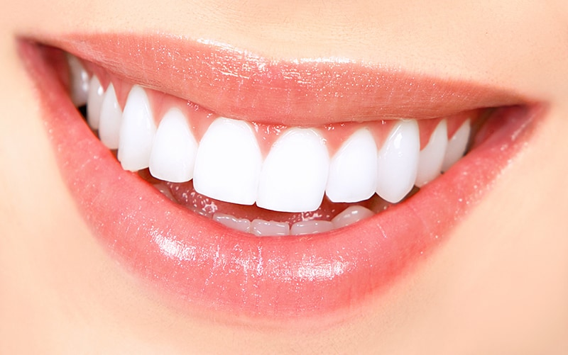 Stained or Discolored Teeth