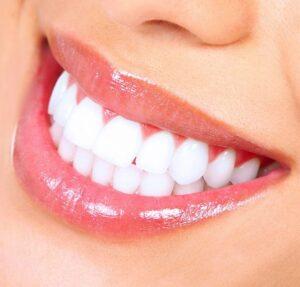 whitening-teeth.